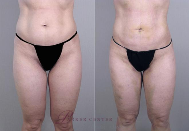 Body Case 851 Before & After View #1 | Paramus, NJ | Parker Center for Plastic Surgery