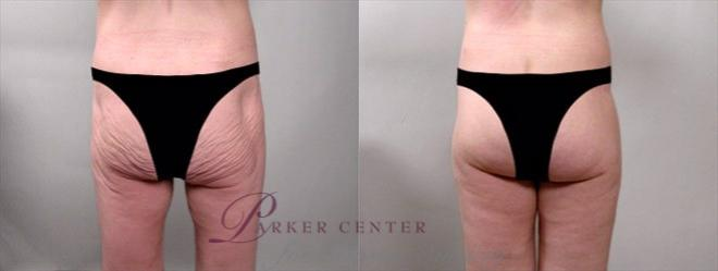 Body Lift Case 750 Before & After View #1 | Paramus, NJ | Parker Center for Plastic Surgery