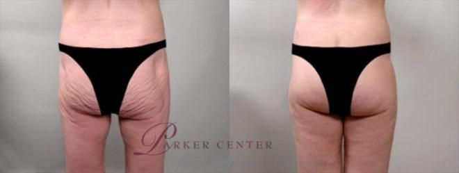 Body Lift Case 920 Before & After View #1 | Paramus, NJ | Parker Center for Plastic Surgery