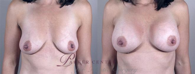 Breast Case 856 Before & After View #1 | Paramus, NJ | Parker Center for Plastic Surgery