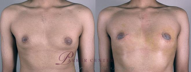 Breast Case 857 Before & After View #1 | Paramus, NJ | Parker Center for Plastic Surgery