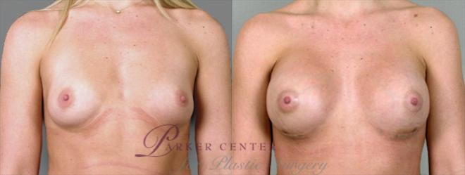 Breast Case 859 Before & After View #1 | Paramus, NJ | Parker Center for Plastic Surgery