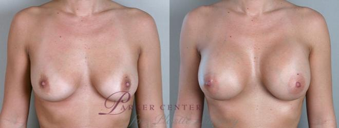 Breast Case 861 Before & After View #1 | Paramus, NJ | Parker Center for Plastic Surgery