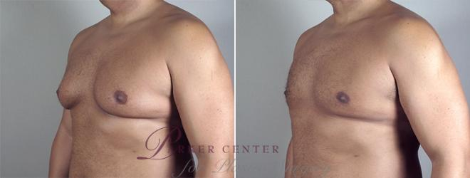Breast Case 862 Before & After View #1 | Paramus, NJ | Parker Center for Plastic Surgery