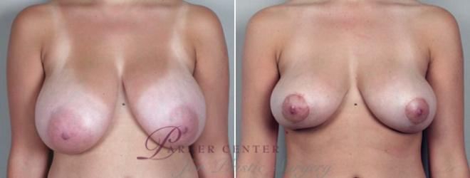 Breast Asymmetry Case 500 Before & After View #1 | Paramus, NJ | Parker Center for Plastic Surgery