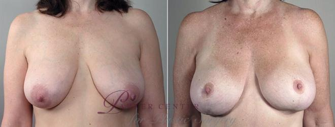 Breast Asymmetry Case 501 Before & After View #1 | Paramus, NJ | Parker Center for Plastic Surgery