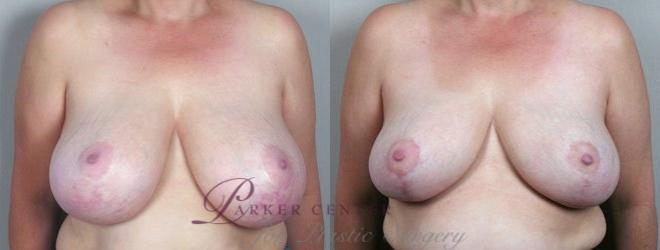 Breast Asymmetry Case 510 Before & After View #1 | Paramus, NJ | Parker Center for Plastic Surgery