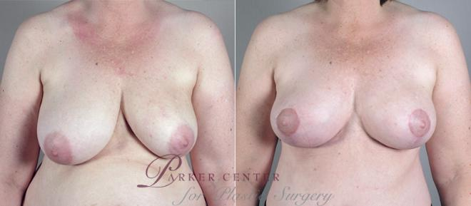 Breast Asymmetry Case 513 Before & After View #1 | Paramus, NJ | Parker Center for Plastic Surgery
