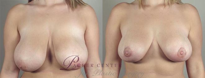 Breast Lift with Auto Aug Case 516 Before & After View #1 | Paramus, NJ | Parker Center for Plastic Surgery