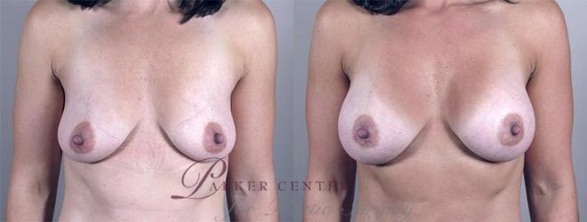 Breast Augmentation Case 349 Before & After View #1 | Paramus, NJ | Parker Center for Plastic Surgery