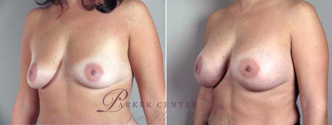 Breast Augmentation Case 356 Before & After View #2 | Paramus, NJ | Parker Center for Plastic Surgery