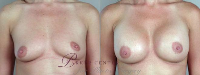 Breast Augmentation Case 377 Before & After View #1 | Paramus, NJ | Parker Center for Plastic Surgery