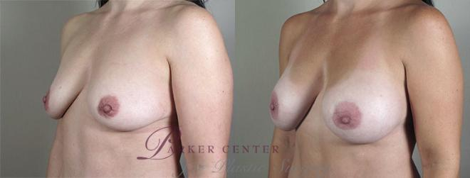 Breast Augmentation Case 403 Before & After View #2 | Paramus, NJ | Parker Center for Plastic Surgery