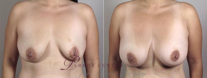 Breast Augmentation Case 404 Before & After View #1 | Paramus, NJ | Parker Center for Plastic Surgery