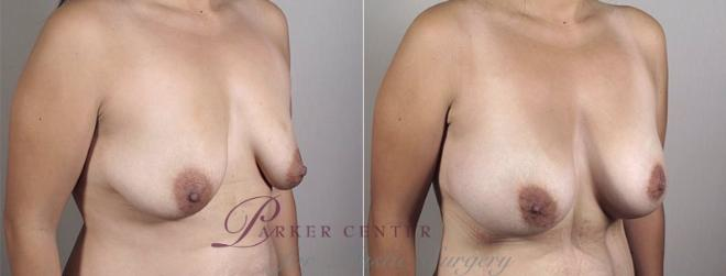 Breast Augmentation Case 404 Before & After View #2 | Paramus, NJ | Parker Center for Plastic Surgery