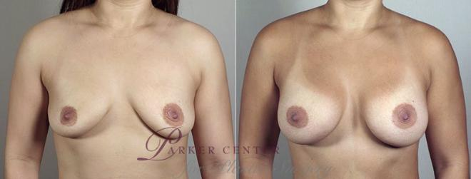 Breast Augmentation Case 406 Before & After View #1 | Paramus, NJ | Parker Center for Plastic Surgery