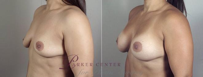 Breast Augmentation Case 406 Before & After View #2 | Paramus, NJ | Parker Center for Plastic Surgery