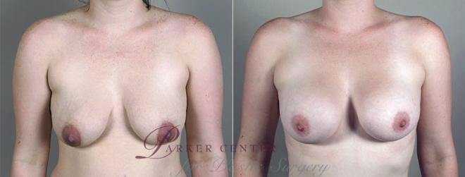 Breast Augmentation Case 408 Before & After View #1 | Paramus, NJ | Parker Center for Plastic Surgery