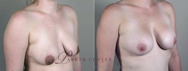 Breast Augmentation Case 408 Before & After View #2 | Paramus, NJ | Parker Center for Plastic Surgery