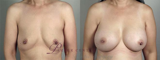 Breast Augmentation Case 417 Before & After View #1 | Paramus, NJ | Parker Center for Plastic Surgery