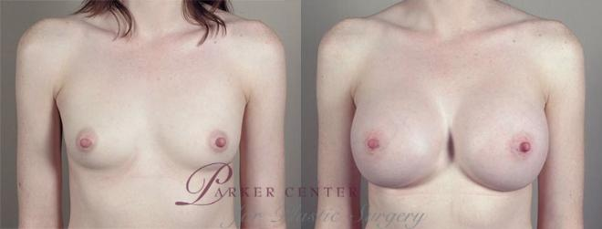 Breast Augmentation Case 420 Before & After View #1 | Paramus, NJ | Parker Center for Plastic Surgery
