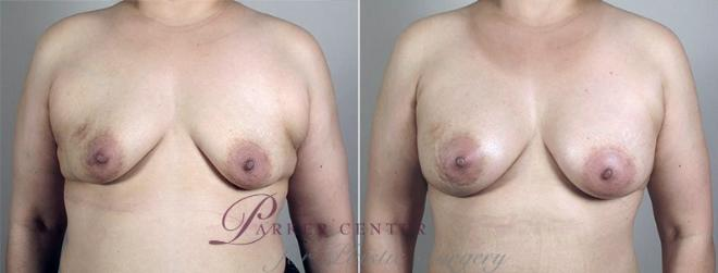 Breast Augmentation Case 428 Before & After View #1 | Paramus, NJ | Parker Center for Plastic Surgery