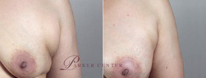 Breast Augmentation Case 428 Before & After View #3 | Paramus, NJ | Parker Center for Plastic Surgery
