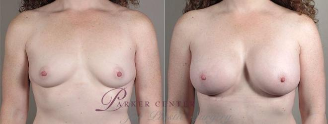Breast Augmentation Case 440 Before & After View #1 | Paramus, NJ | Parker Center for Plastic Surgery