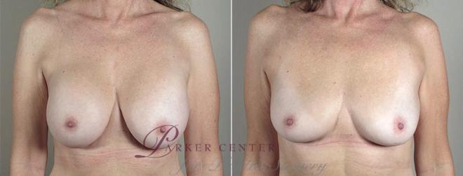 Breast Implant Removal Case 574 Before & After View #1 | Paramus, NJ | Parker Center for Plastic Surgery