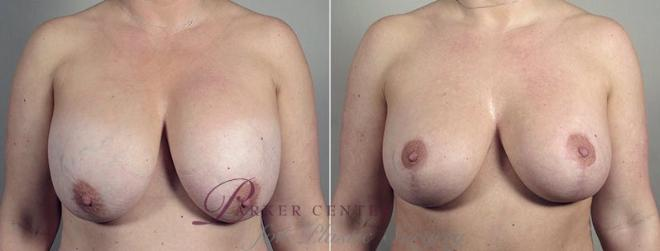 Breast Implant Revision Case 606 Before & After View #1 | Paramus, NJ | Parker Center for Plastic Surgery