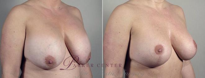 Breast Implant Revision Case 606 Before & After View #2 | Paramus, NJ | Parker Center for Plastic Surgery