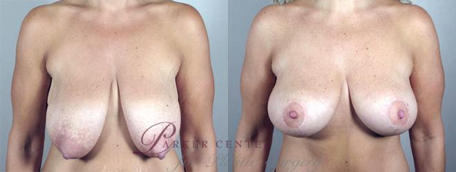 Breast Lift Case 548 Before & After View #1 | Paramus, NJ | Parker Center for Plastic Surgery