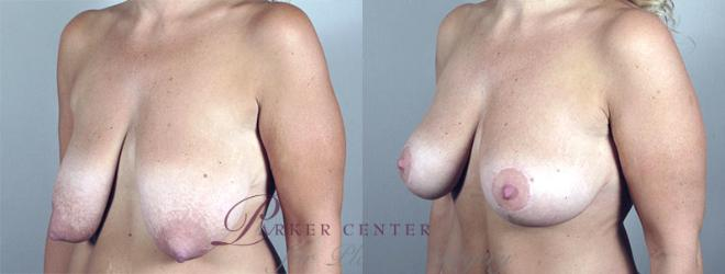Breast Lift Case 548 Before & After View #2 | Paramus, NJ | Parker Center for Plastic Surgery