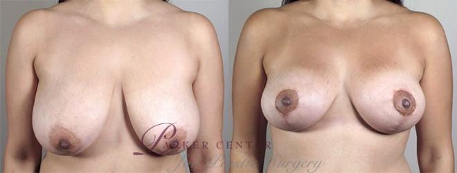 Breast Lift with Auto Aug Case 520 Before & After View #1 | Paramus, NJ | Parker Center for Plastic Surgery