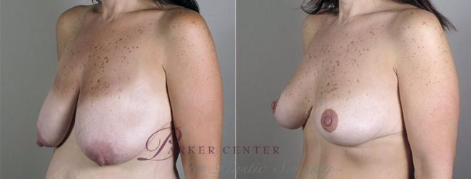 Breast Lift with Auto Aug Case 521 Before & After View #2 | Paramus, NJ | Parker Center for Plastic Surgery