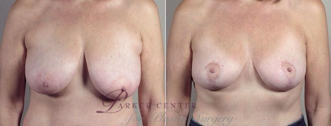 Breast Lift with Auto Aug Case 522 Before & After View #1 | Paramus, NJ | Parker Center for Plastic Surgery