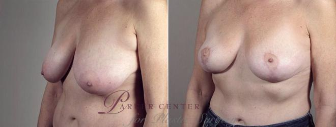 Breast Lift with Auto Aug Case 522 Before & After View #2 | Paramus, NJ | Parker Center for Plastic Surgery