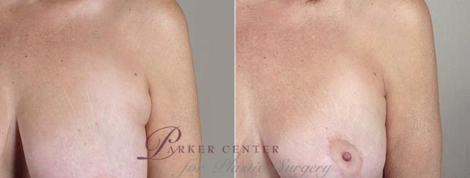 Breast Lift with Auto Aug Case 522 Before & After View #3 | Paramus, NJ | Parker Center for Plastic Surgery