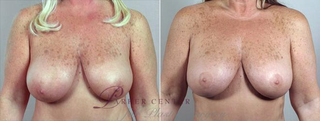 Breast Reduction Case 527 Before & After View #1 | Paramus, NJ | Parker Center for Plastic Surgery