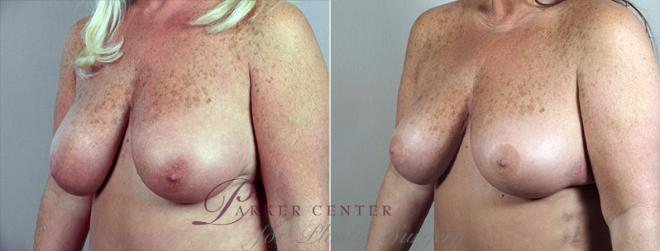 Breast Reduction Case 527 Before & After View #2 | Paramus, NJ | Parker Center for Plastic Surgery