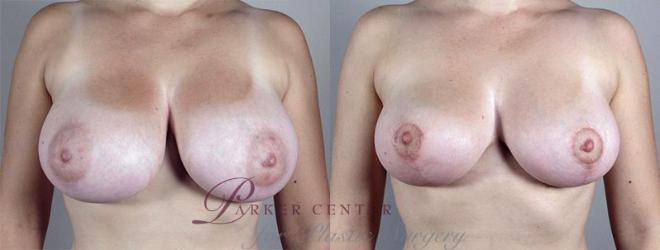Breast Reduction Case 529 Before & After View #1 | Paramus, NJ | Parker Center for Plastic Surgery