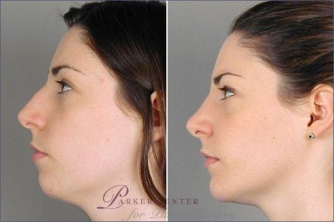 Cheek/Chin Implants Case 892 Before & After View #4 | Paramus, NJ | Parker Center for Plastic Surgery