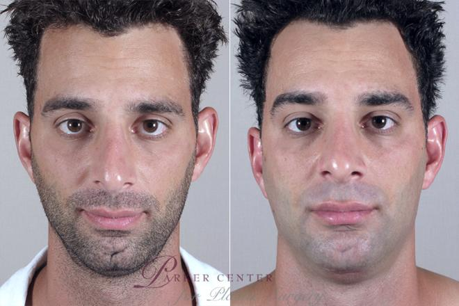 Chin Implant Case 252 Before & After View #1 | Paramus, NJ | Parker Center for Plastic Surgery