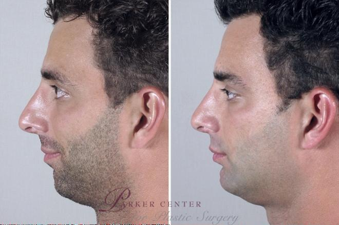 Chin Implant Case 955 Before & After View #5 | Paramus, NJ | Parker Center for Plastic Surgery
