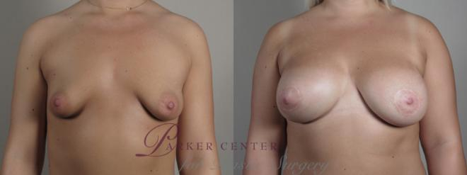 Correction of Tubular Breasts Case 973 Before & After Front breast view | Paramus, NJ | Parker Center for Plastic Surgery