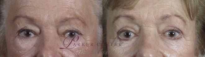 Eyelid Lift Case 1027 Before & After Front | Paramus, NJ | Parker Center for Plastic Surgery