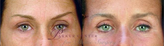 Eyelid Lift Case 55 Before & After View #1 | Paramus, NJ | Parker Center for Plastic Surgery