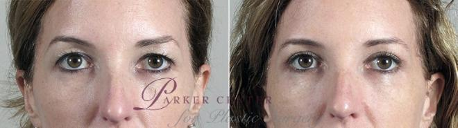 Eyelid Lift Case 95 Before & After View #1 | Paramus, NJ | Parker Center for Plastic Surgery