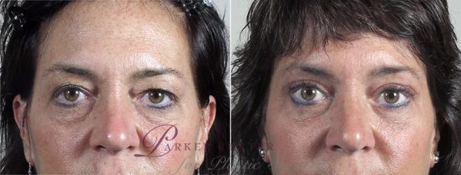 Eyelid Lift Case 96 Before & After View #1 | Paramus, NJ | Parker Center for Plastic Surgery