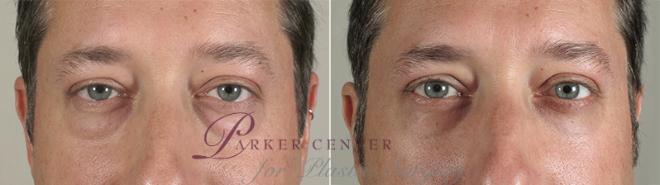 Eyelid Surgery Case 48 Before & After View #1 | Paramus, NJ | Parker Center for Plastic Surgery